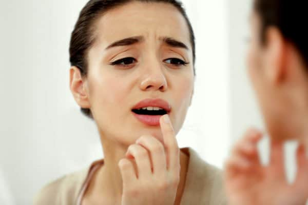 How To Get Rid Of A Cold Sore Overnight